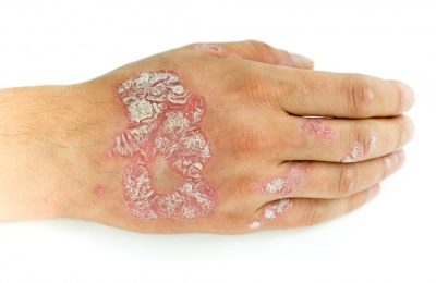 The Only Thing You Wanted To Understand About The Effective Management Of Skin psoriasis